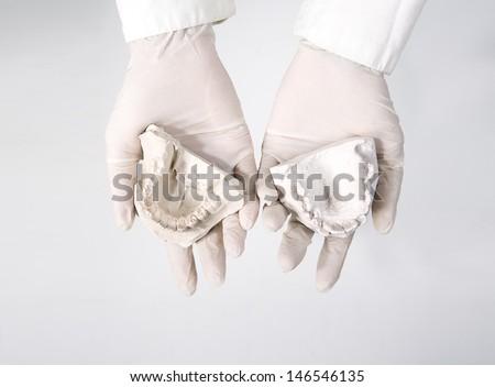 hands holding dental gypsum models, dental concept - stock photo