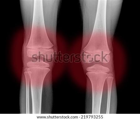 2 Knee x-ray - stock photo