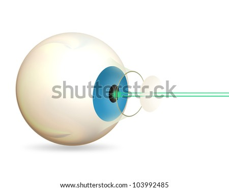 Laser eye surgery / therapy on the eye