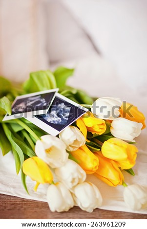 Photo of an ultrasound sonogram of an unborn baby with bouquet  - stock photo