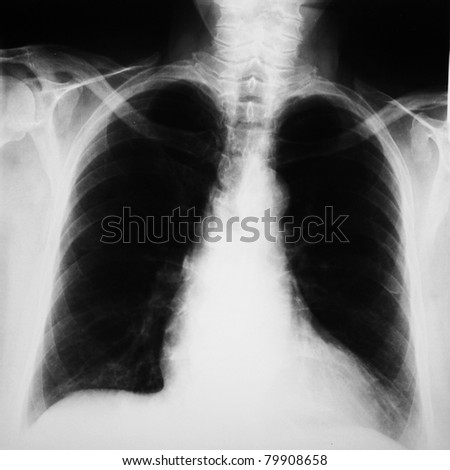 radiograph of human chest/ lungs - medical background