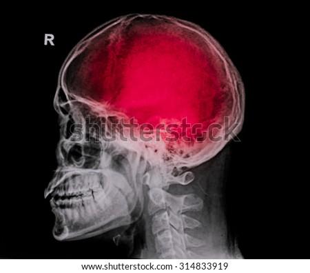 """Stroke"" (cerebrovascular accident). Film x-ray skull lateral with stroke - stock photo"