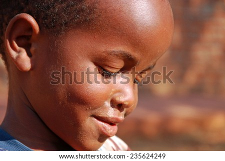 """08/20/2014""-Village of Pomerini-Tanzania-Africa-African unidentified child sick of the virus AIDS, helped by the Friars of the Franciscan Mission to give him the necessary medicines, a smile and a possible future"