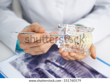 Woman practitioner studying dental model and teeth x-ray. Close-up of female dentist's hands with tools.  - stock photo