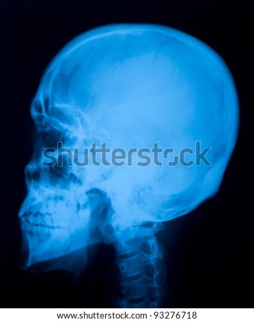 X ray film  of skull lateral - stock photo