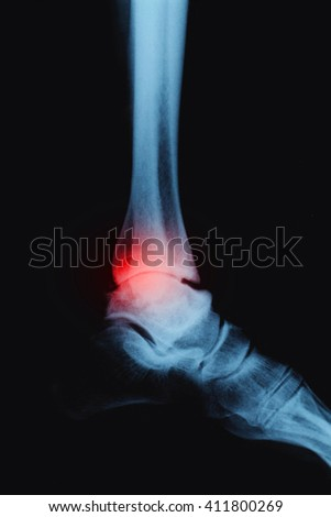 X-ray foot on a black background . Osteoarthritis of the ankle 3 degrees. - stock photo