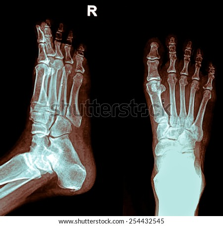 x-ray image of a foot, front and side view - stock photo