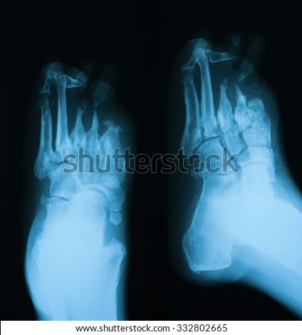 X-ray image of diabetic foot, AP and oblique view. - stock photo