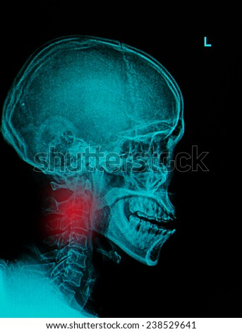 X ray Image of Spinal Column Neck pain and Skull Head Stress - stock photo