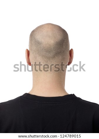 A bald-headed man with hair loss