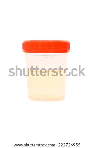 A bottle with urine sample against a white background - stock photo