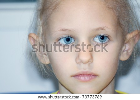 a caucasian child suffering hair loss due to chemotherapy to cure cancer - stock photo