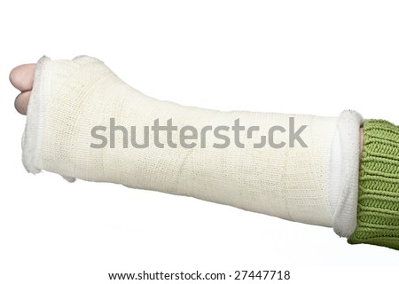 A close up of a broken arm in a plaster cast on a white background. - stock photo