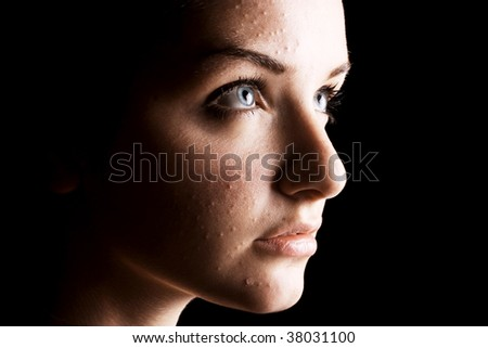 A close up of a young female with spotty skin in front of a black background. High contrast. - stock photo