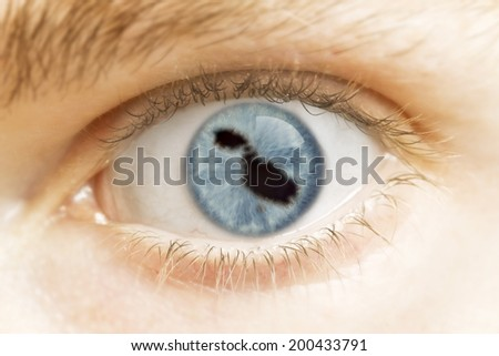 A close-up of an eye with the pupil in the shape of Malta.(series)