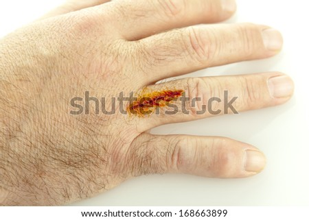 A cut on hand treated with iodine isolated on white - stock photo