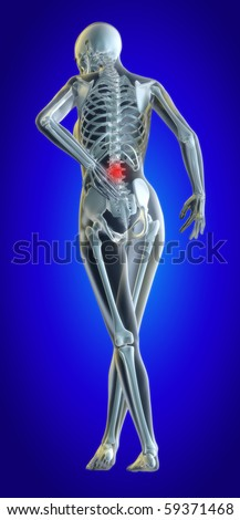 A 3d illustrated file of a womans lower back in pain showing skeleton and inflamed area - stock photo
