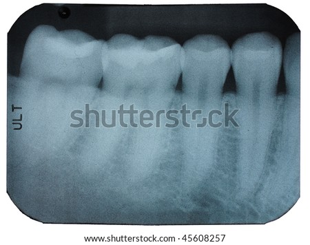 A dental x-ray film is isolated on white.