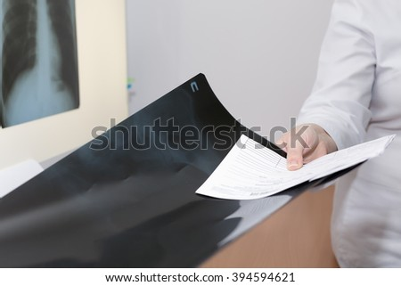A doctor giving a result of an X-ray - stock photo