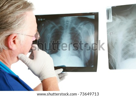 a doctor or surgeon examins his patients xrays isolated on white with room for your text - stock photo