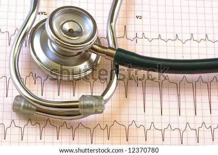 A ekg strip from a health clinic - stock photo
