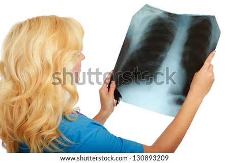 A female doctor examining an X-ray picture - stock photo