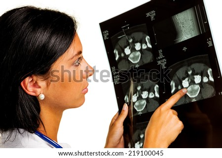 a female doctor holding x-ray image of a disc infiltration in hand. - stock photo