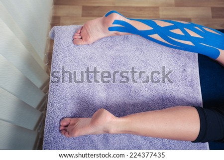 A female leg on being treated with kinesio tape - stock photo