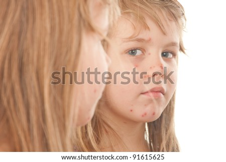 A girl suffering from varicella - stock photo