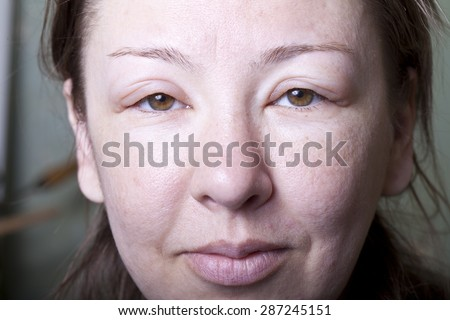 a girl with allergenic edema - stock photo