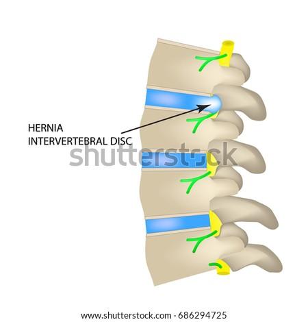 intervertebral discs stock images, royalty-free images & vectors, Human Body