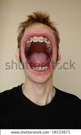 A huge screaming mouth with braces on his teeth, yelling his face off. - stock photo