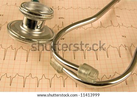 a  12 lead EKG - stock photo