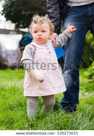 A little girl with her arm in plaster. - stock photo