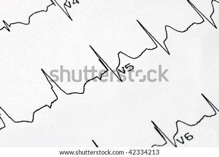 A macro picture of the EKG chart - stock photo