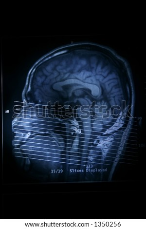 A magnetic resonance imaging scan of the human head. - stock photo