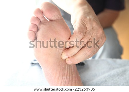 A man has soreness in his arch. - stock photo