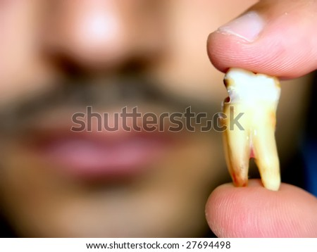 A man holding his damaged extracted teeth. - stock photo