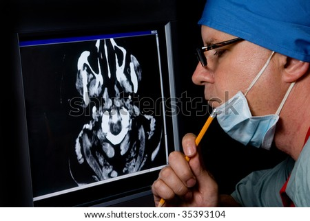A medical doctor examining a CTT Scan.