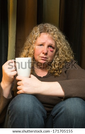 a middle aged woman with a black eye looks sad and introspective. - stock photo