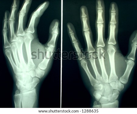 A pair of hands X-rayed - stock photo