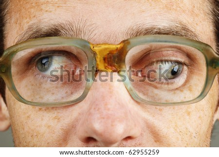 A person suffering from a severe form of strabismus - eye closeup - stock photo