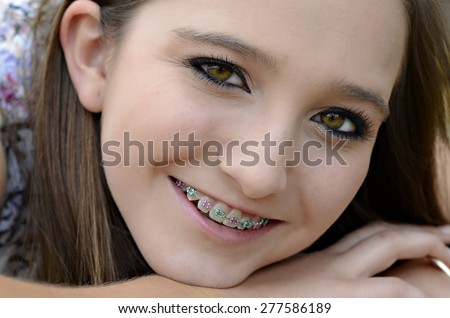 A pretty young teenager closeup with braces on her teeth.
