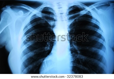 a radiograph of human body is in black and white tones - stock photo