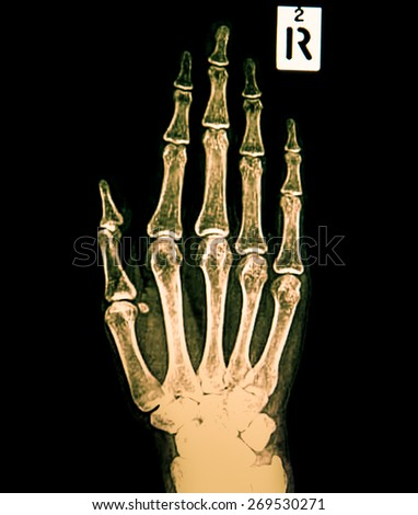 A radiography of the right hand - stock photo