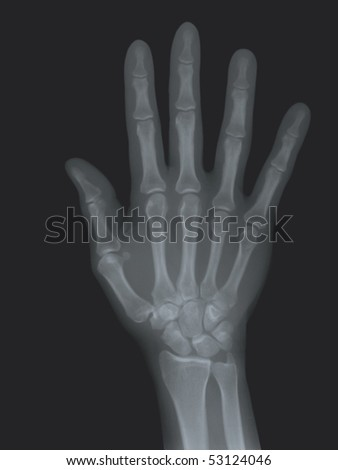 A radiography of the right hand. Mecial concept - stock photo