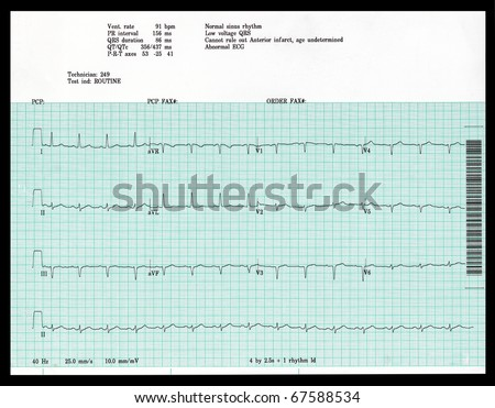 A real EKG shows an abnormal result. - stock photo