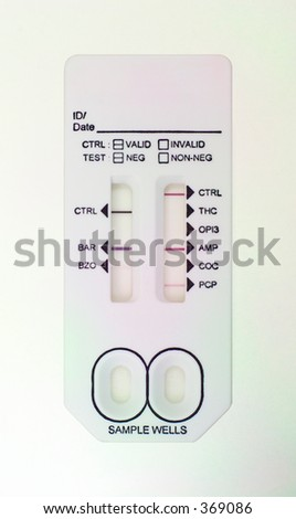 A real 7 minute test UA (urinalysis) to screen for drugs in the body on a patient. This is often done for patient safety in the ER, for example, whether it is safe to proceed to surgery (anesthesia). - stock photo