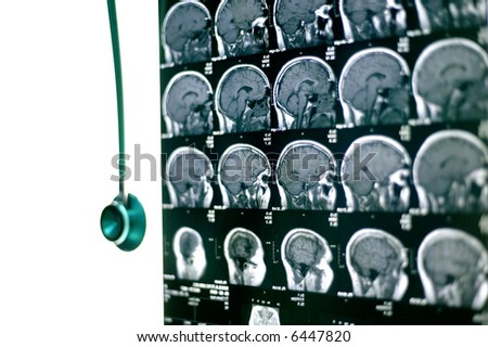 A real MRI/ MRA (Magnetic Resonance Angiogram) of the brain vasculature (arteries) in monochrome - stock photo