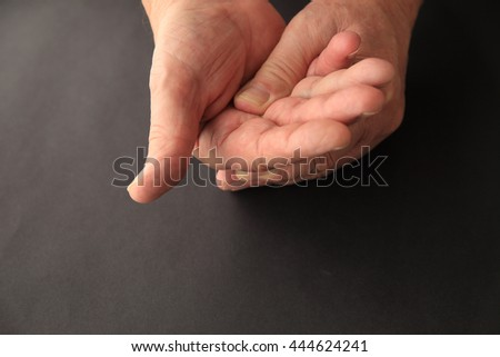 A senior man applies light pressure to the palm of his hand. - stock photo